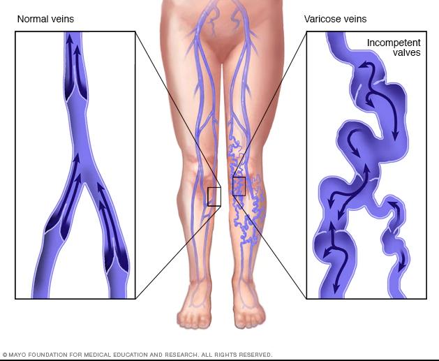durere venelor verticale ce face ca venele să se micșoreze