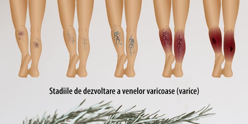 varice și dureri la genunchi