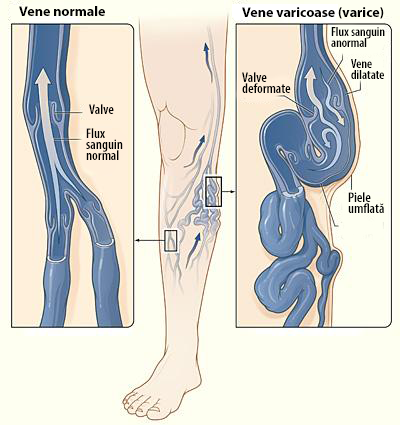umflarea varicelor la picioare